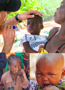 Images of trachoma patients